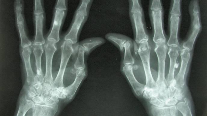 Rheumatoid Arthritis Patients Experience Cardiovascular Benefits from Statins