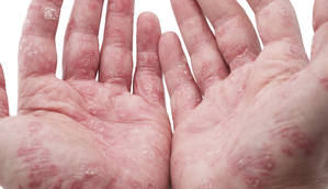 Prednisone and Lupus – A Treatment Mainstay?