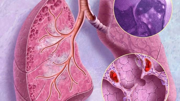 Improvements in Sarcoidosis-Associated Pulmonary Hypertension