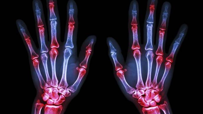 Higher Prevalence of Arthritis Among US Adults
