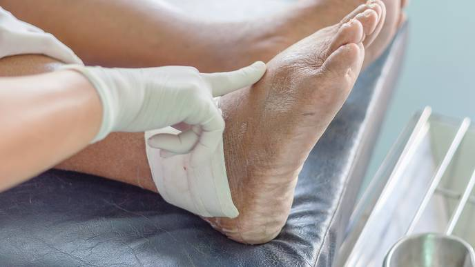 Majority of Gout Cases Diagnosed in Primary Care Are Valid for Research