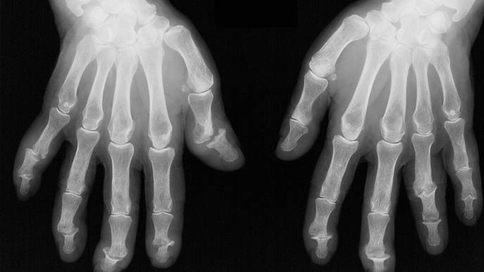 Comparing Physician & Patient Reports of Psoriatic Arthritis Remission