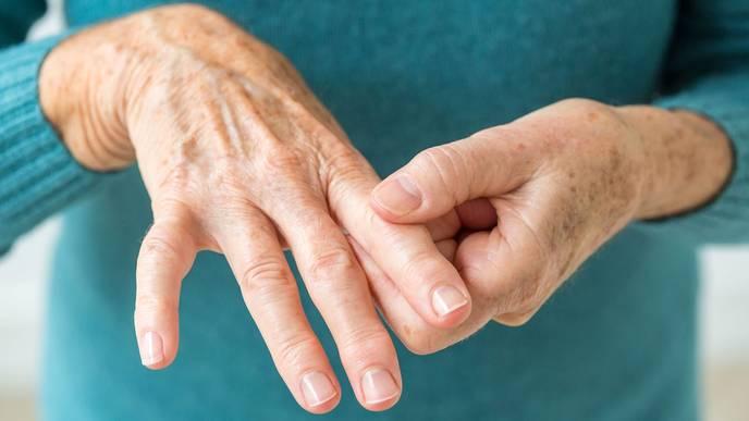This Vitamin Supplement Can Help Prevent Rheumatoid Arthritis