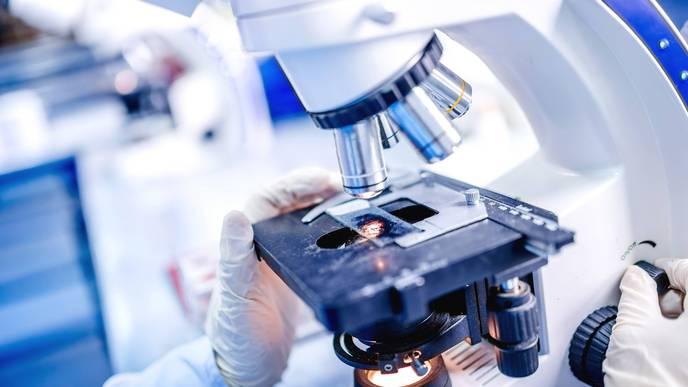 Study Identifies Autoimmune Disease Associated with Testicular Cancer