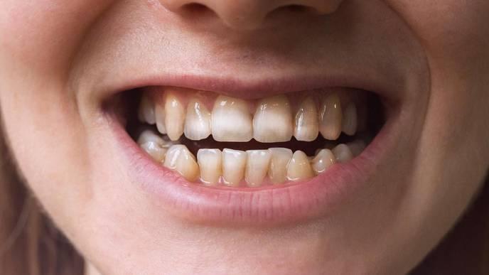 Having These Marks on Teeth Could Point to This Autoimmune Disorder