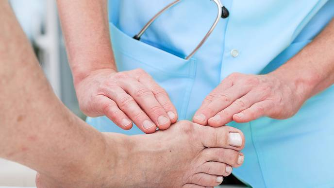 Can Fad Diets like Keto Lead to Gout?