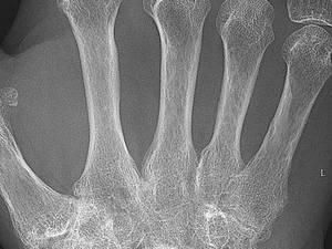 Rheumatology Updates: Making NORM the Norm