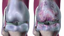 Rejuvenation of Aging Cells Helps to Cure Osteoarthritis