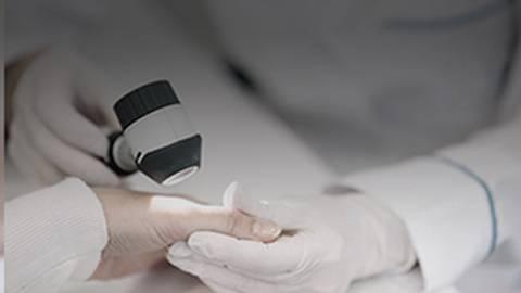 A Dermatologic Perspective on Spondyloarthritis Above & Beneath the Skin's Surface