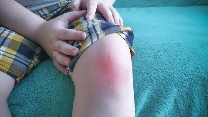 Genetic Data Can Improve Clinical Understanding of Juvenile Idiopathic Arthritis