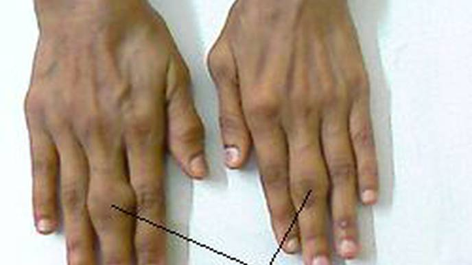 New Option for Treating Active Rheumatoid Arthritis