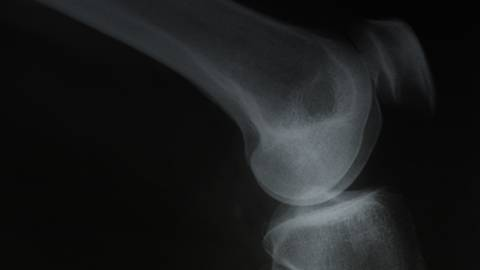 Shattering Myths About Osteoporosis
