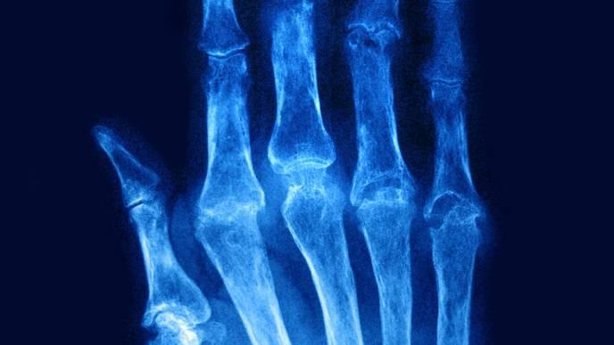 Autophagy May Influence Disease Course in Rheumatoid Arthritis