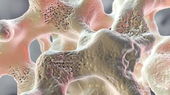 Romosozumab Increases Bone Formation, Reduces Bone Resorption