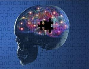 Why Optimal RA Treatment Plans Take So Long to Achieve