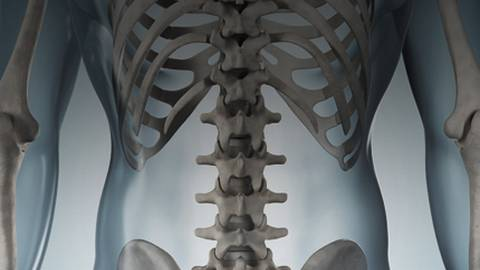 "Beyond the ""Barebones"" of Osteoporosis Management"